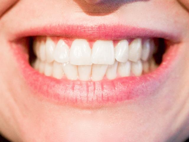 ביטוח שיניים קולקטיבי